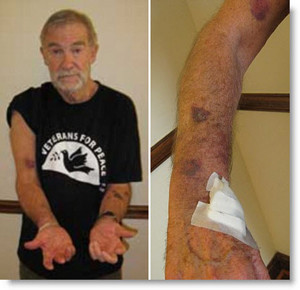ray-mcgovern-injuries-arrest-clinton-speech-feb-2011-300x290